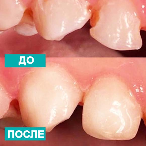 molochnyi-2